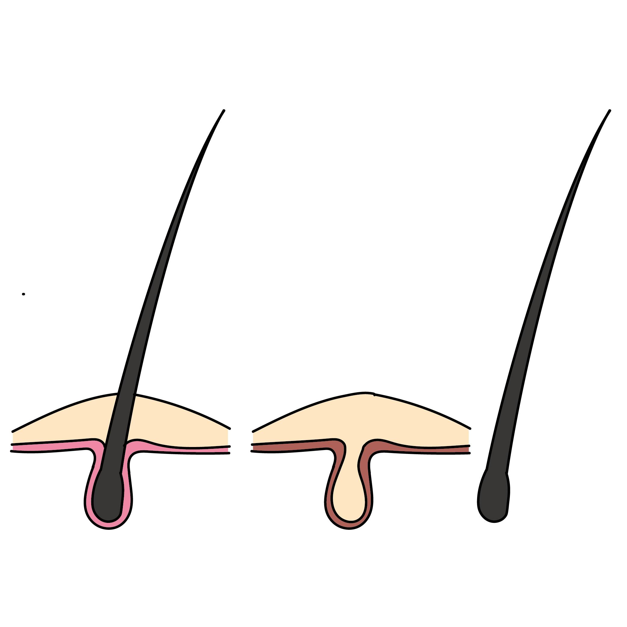 頭皮のダメージ